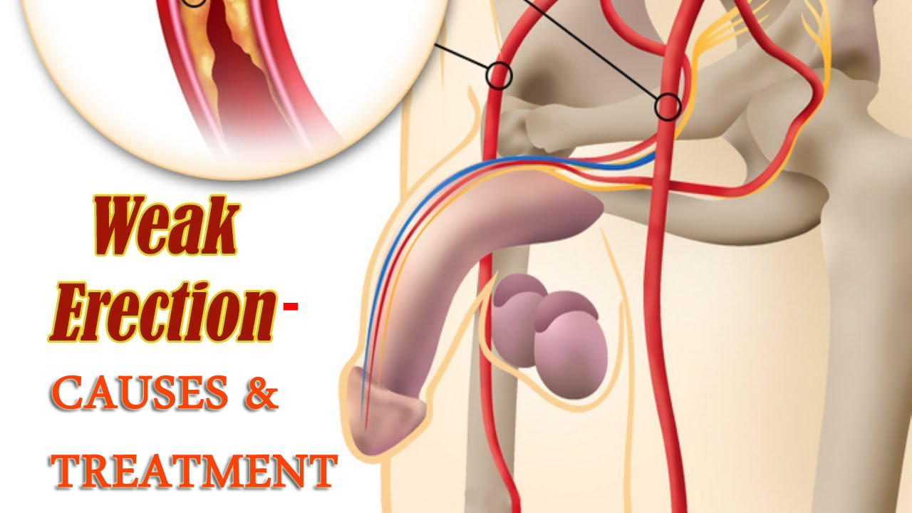 Causes and Treatment for Weak Erection