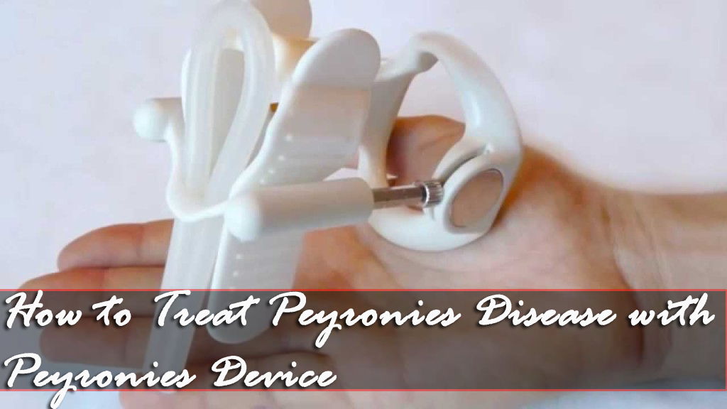 How to treat Peyronies Disease with Device