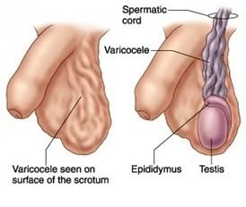 Varicocele in Testicle- Symptoms & its Treatment - Men Sexual Clinic