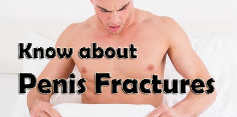 Penis Fractures – A Complete Guide to Know about and How to Treat!