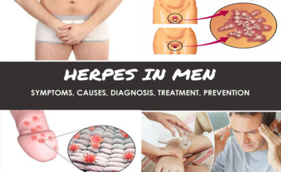 Herpes: Symptoms, Causes, Diagnosis, Treatment, Prevention