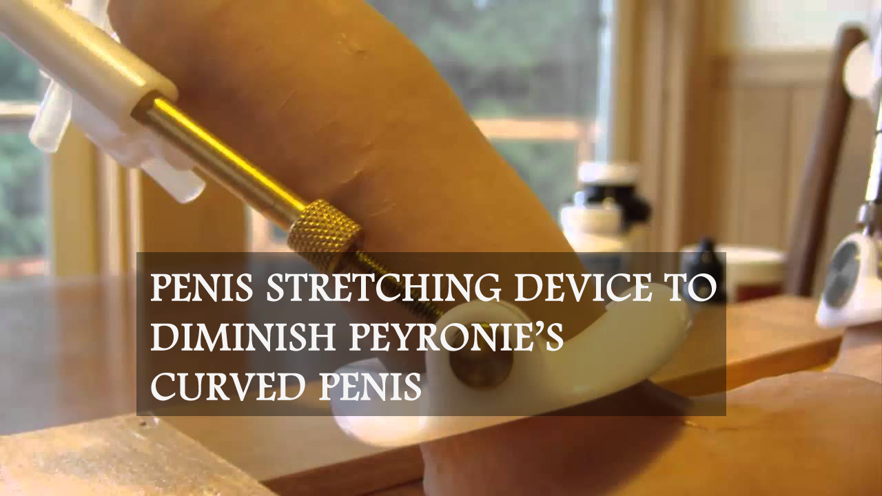 Penis Stretching Device to Diminish Peyronie's Curved Penis