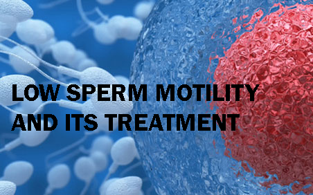 The Causes of Low Sperm Motility and How It Can Be Treated