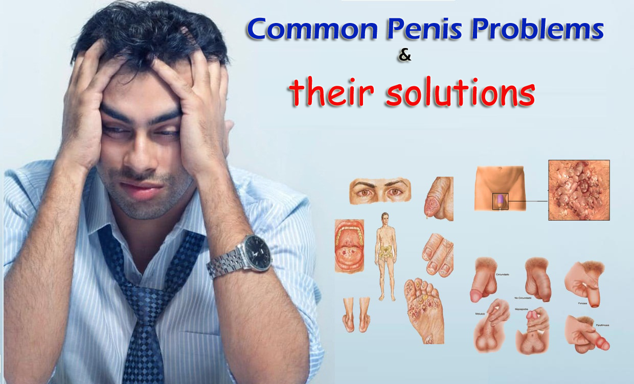 common penis problems