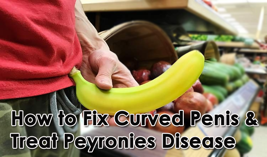 How to Fix Curved Penis & Treat Peyronies Disease