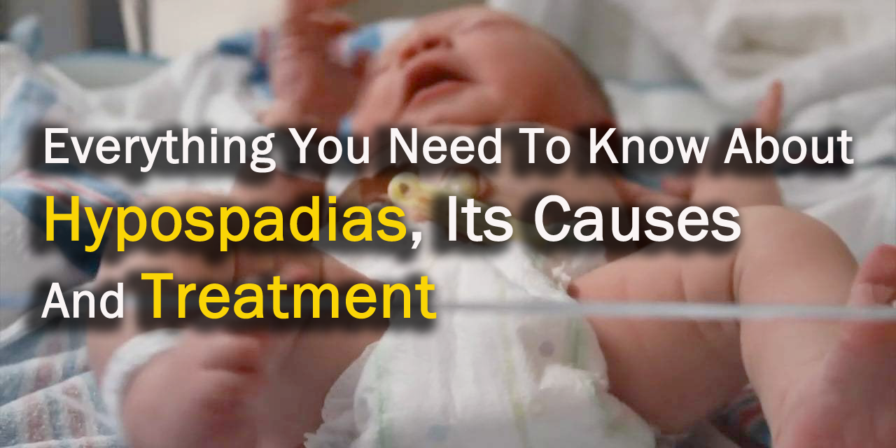 Everything You Need To Know About Hypospadias, Its Causes And Treatment