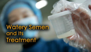 Everything You Need To Know About Watery Semen and Its Treatment