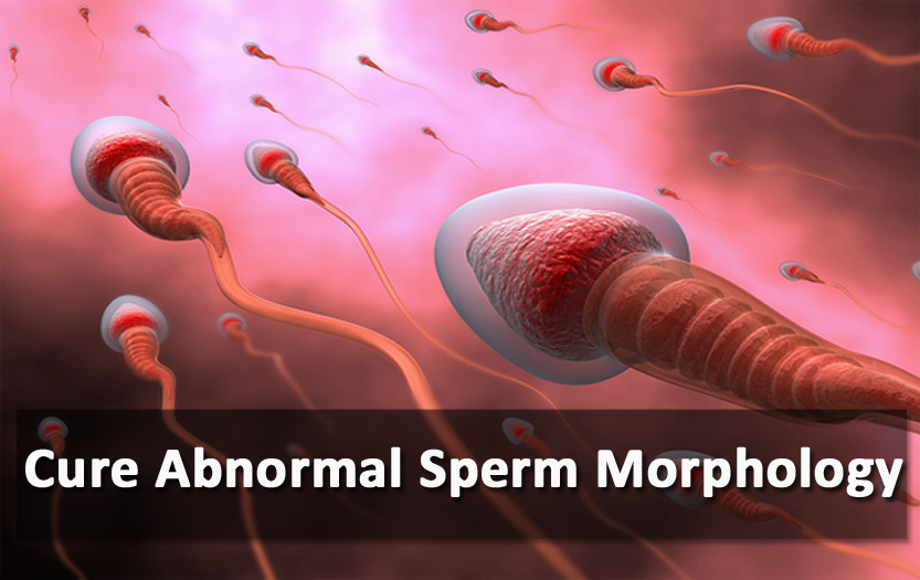 Everything You Need To Know About Abnormal Sperm Morphology And Its Treatment