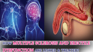 How Multiple Sclerosis And Erectile Dysfunction Are Linked & Treated?