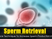 Sperm Retrieval- Advance Technique To Increase Sperm Production In Men
